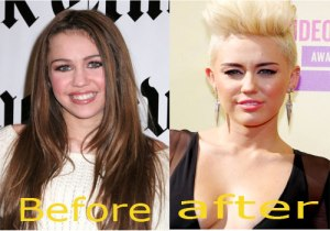 Miley-Cyrus-Nose-Job-Before-and-After